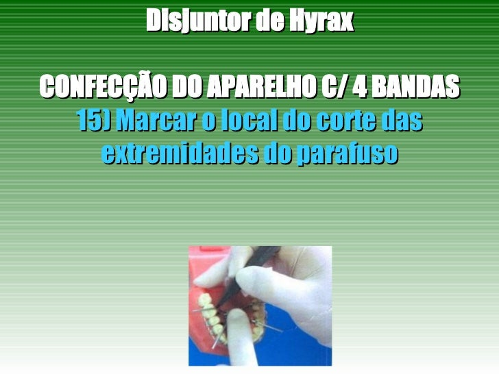 Disjuntor de Hyrax CONFECÇÃO DO APARELHO C/ 4 BANDAS 15) Marcar o local do corte das extremidades do parafuso