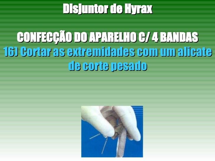 Disjuntor de Hyrax CONFECÇÃO DO APARELHO C/ 4 BANDAS 16) Cortar as extremidades com um alicate de corte pesado