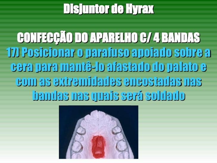 Disjuntor de Hyrax CONFECÇÃO DO APARELHO C/ 4 BANDAS 17) Posicionar o parafuso apoiado sobre a cera para mantê-lo afastado...