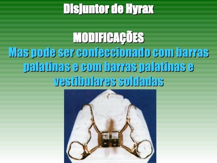 Disjuntor de Hyrax MODIFICAÇÕES Mas pode ser confeccionado com barras palatinas e com barras palatinas e vestibulares sold...
