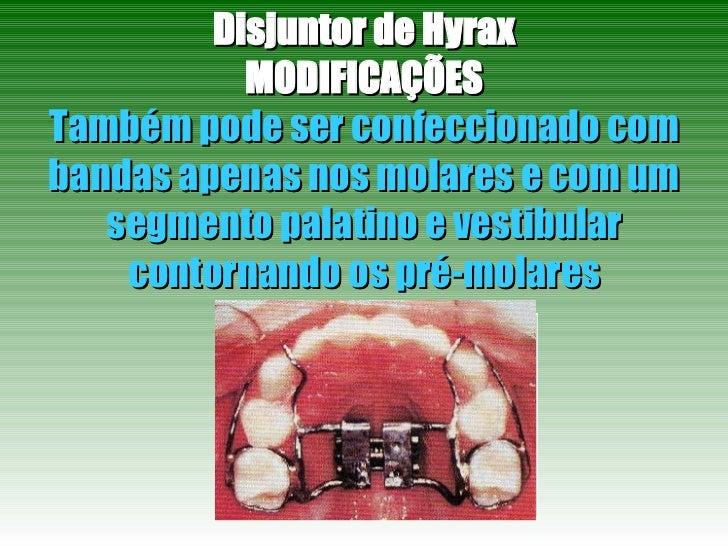 Disjuntor de Hyrax MODIFICAÇÕES Também pode ser confeccionado com bandas apenas nos molares e com um segmento palatino e v...