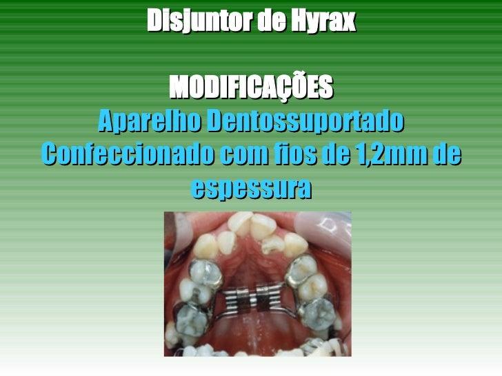 Disjuntor de Hyrax MODIFICAÇÕES Aparelho Dentossuportado Confeccionado com fios de 1,2mm de espessura
