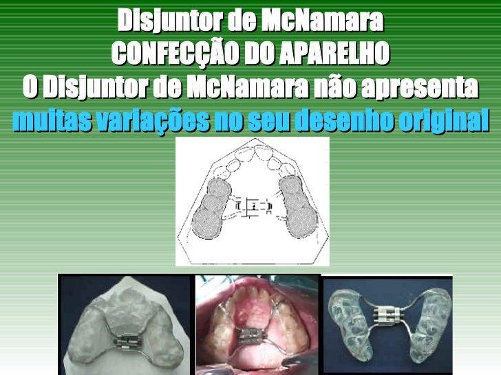 Disjuntor de McNamara CONFECÇÃO DO APARELHO O Disjuntor de McNamara não apresenta  muitas variações no seu desenho original