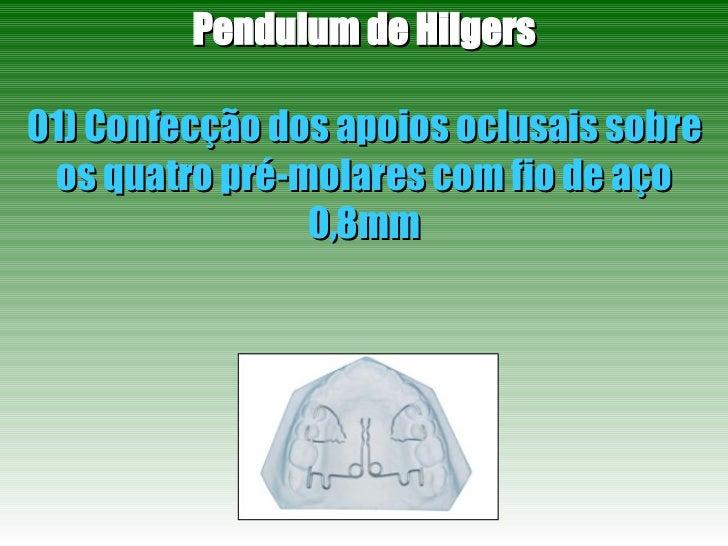 Pendulum de Hilgers 01) Confecção dos apoios oclusais sobre os quatro pré-molares com fio de aço 0,8mm