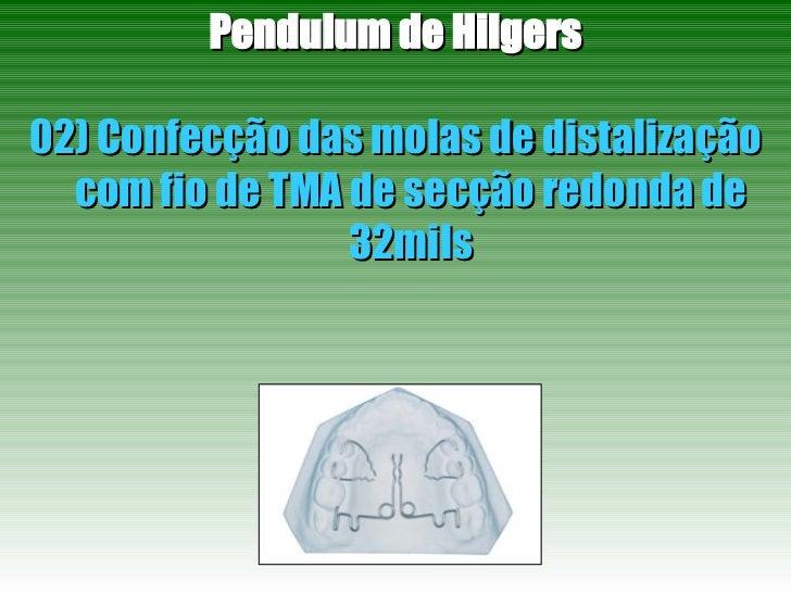 Pendulum de Hilgers 02) Confecção das molas de distalização com fio de TMA de secção redonda de 32mils