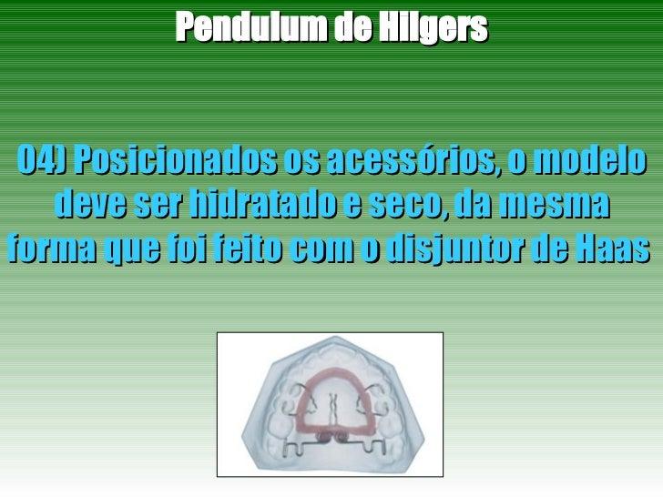 Pendulum de Hilgers 04) Posicionados os acessórios, o modelo deve ser hidratado e seco, da mesma forma que foi feito com o...