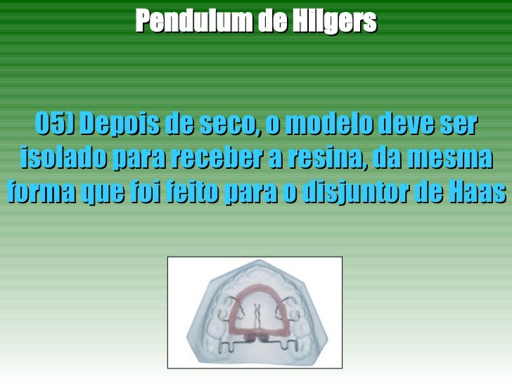 Pendulum de Hilgers 05) Depois de seco, o modelo deve ser isolado para receber a resina, da mesma forma que foi feito para...
