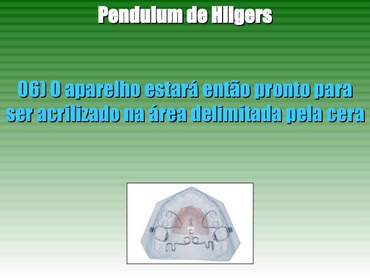 Pendulum de Hilgers 06) O aparelho estará então pronto para ser acrilizado na área delimitada pela cera