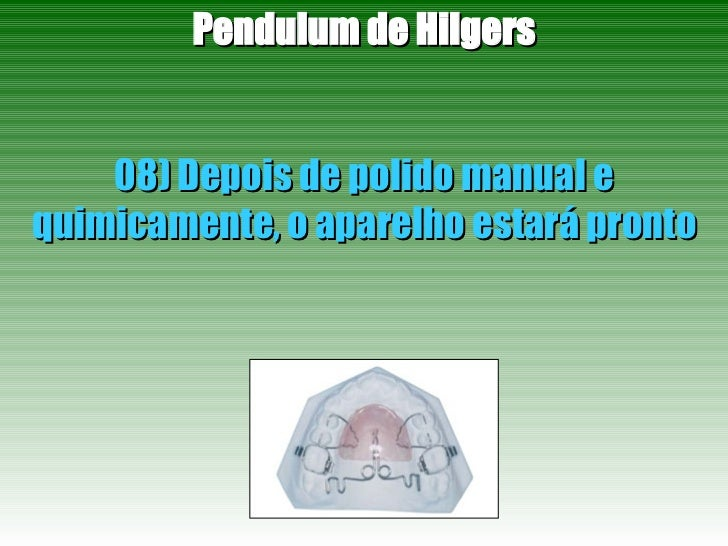 Pendulum de Hilgers 08) Depois de polido manual e quimicamente, o aparelho estará pronto