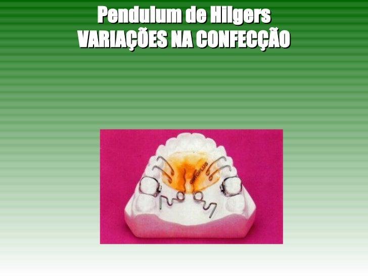 Pendulum de Hilgers VARIAÇÕES NA CONFECÇÃO
