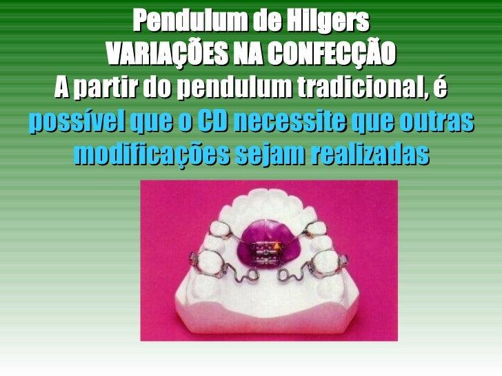 Pendulum de Hilgers VARIAÇÕES NA CONFECÇÃO A partir do pendulum tradicional, é  possível que o CD necessite que outras mod...