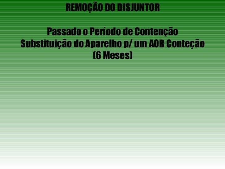 REMOÇÃO DO DISJUNTOR Passado o Período de Contenção Substituição do Aparelho p/ um AOR Conteção (6 Meses)