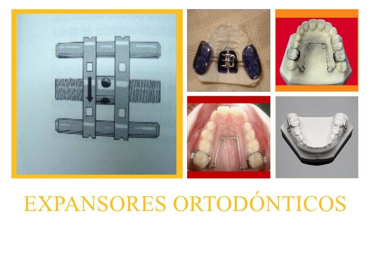 +EXPANSORES ORTODÓNTICOSPresentado por:Melisa Cruz       2007-2173.   Laura Fernández   2008-0571.
