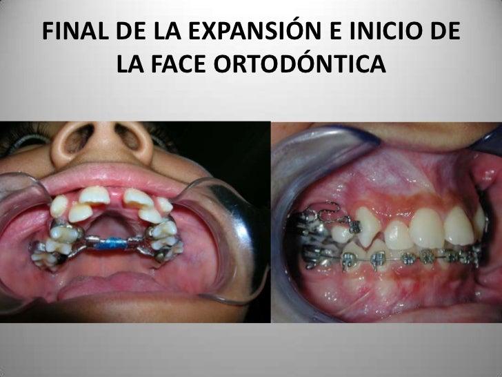 FINAL DE LA EXPANSIÓN E INICIO DE      LA FACE ORTODÓNTICA