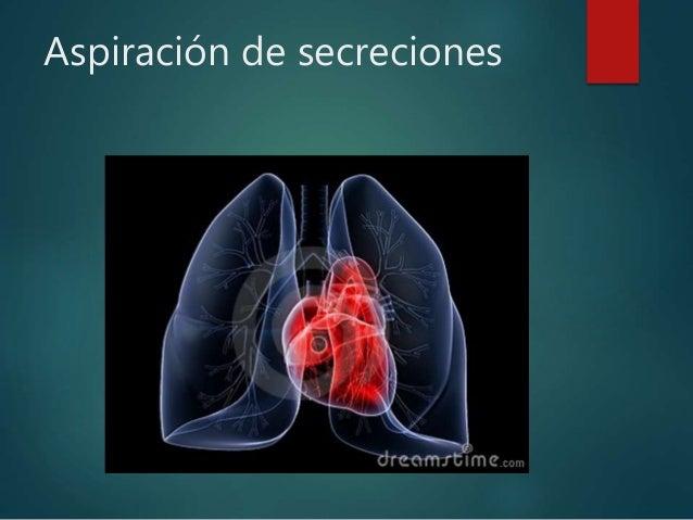 Tecnica De Aspiracion De Secreciones Download