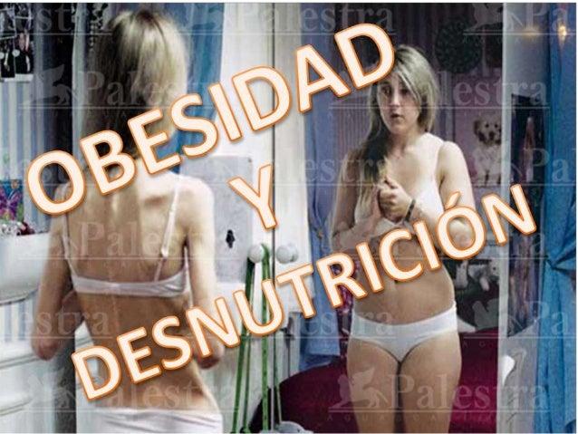 Encuesta Nacional de Salud yNutrición 2012.La obesidad es el principal factor de riesgo modificable para eldesarrollo de e...