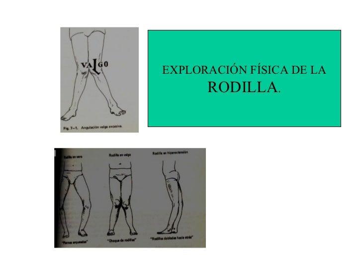 EXPLORACIÓN FÍSICA DE LA      RODILLA.