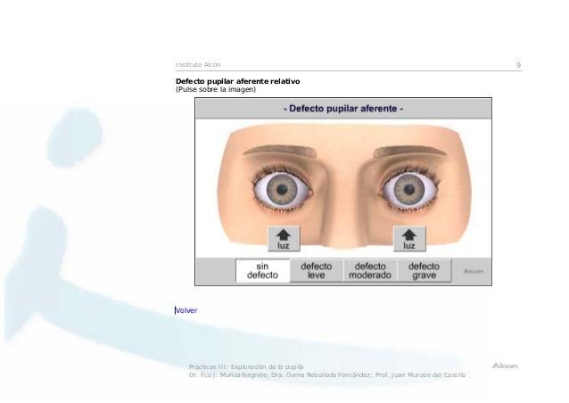 exploraci u00f3n pupilar