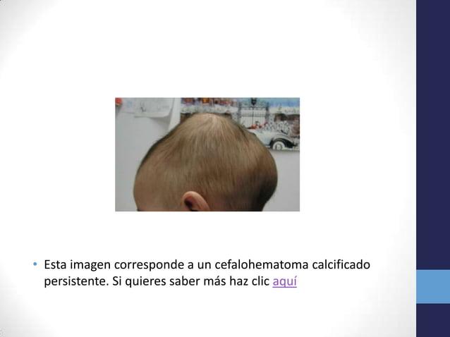 • Esta imagen corresponde a un cefalohematoma calcificadopersistente. Si quieres saber más haz clic aquí