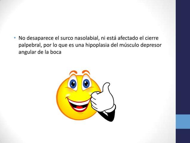 • No desaparece el surco nasolabial, ni está afectado el cierrepalpebral, por lo que es una hipoplasia del músculo depreso...