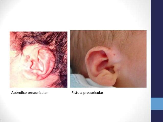 Apéndice preauricular Fístula preauricular