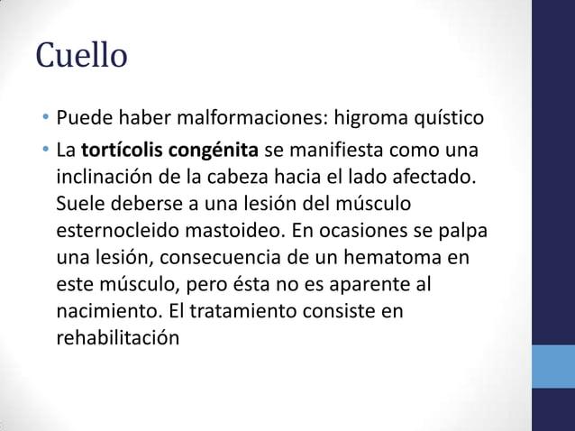 Cuello• Puede haber malformaciones: higroma quístico• La tortícolis congénita se manifiesta como unainclinación de la cabe...