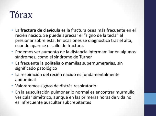 """Tórax• La fractura de clavícula es la fractura ósea más frecuente en elrecién nacido. Se puede apreciar el """"signo de la te..."""