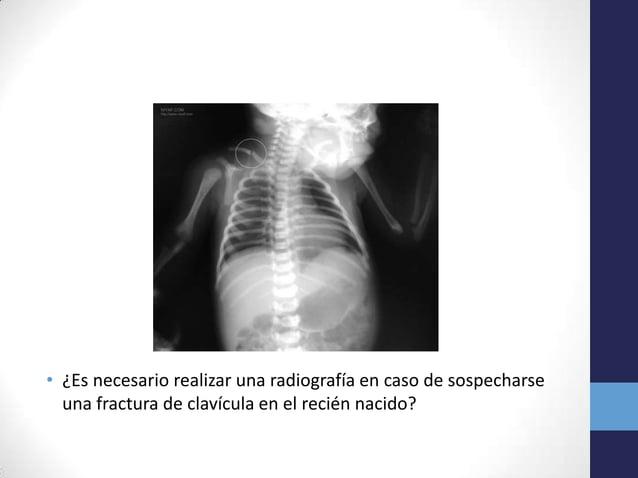 • ¿Es necesario realizar una radiografía en caso de sospecharseuna fractura de clavícula en el recién nacido?