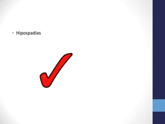 • Hipospadias