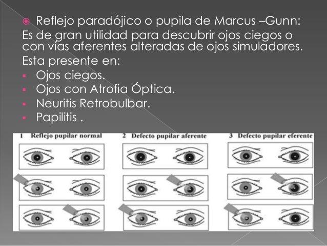 Exploracion De Los Reflejos Pupilares