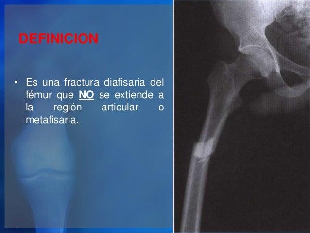 Fracturas de mu eca y pelvis for Jardinero definicion