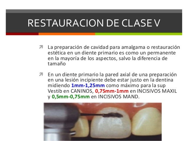CLASES DE BLACK. ODONTOLOGIA