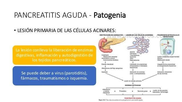 PATOLOGÍA DEL PÁNCREAS - PANCREATITIS AGUDA