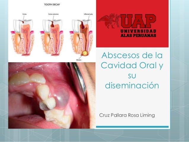 Abscesos de la Cavidad Oral y su diseminación Cruz Pallara Rosa Liming