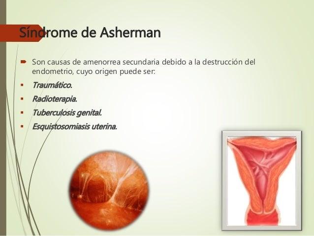SINDROME DE ASHERMAN DOWNLOAD
