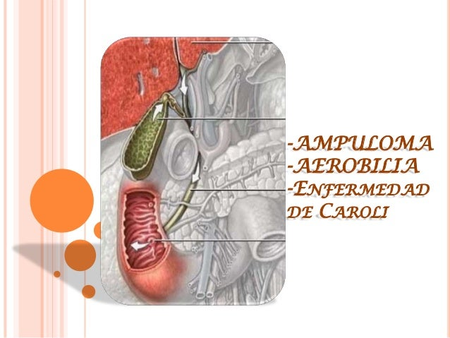 -AMPULOMA-AEROBILIA-ENFERMEDADDE CAROLI