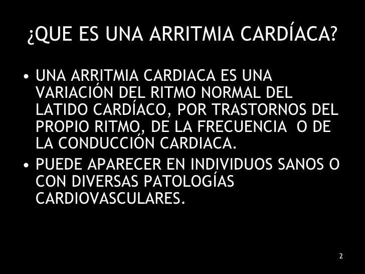 Arritmias Cardiacas Slide 2