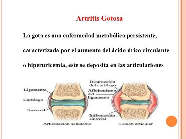 remedios caseros contra el acido urico acido urico alto dolor pie ver con la cerveza produce colesterol acido urico