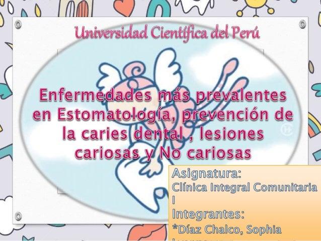 Enfermeda des más prevalentes en Estomatolo gía CARIES DENTAL HALITOSIS CANCER BUCAL GINGIVITIS PERIODONTI TIS