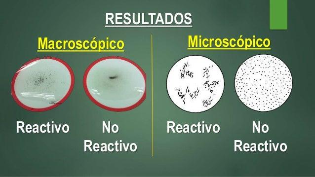 serología prueba no treponemica rpr & en suero no reactivo
