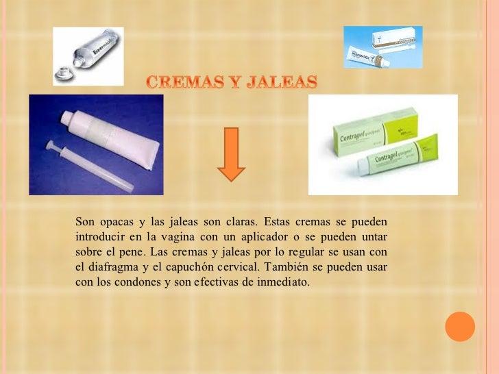 cremas anticonceptivas