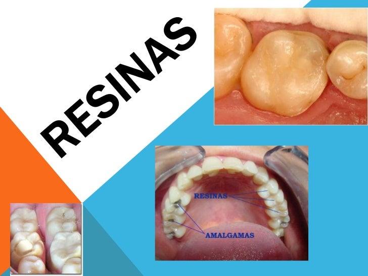 Las resinas dentales :Son restauraciones estéticas de los dientes, que  se utilizan en dientes dañados o cariados en  las ...