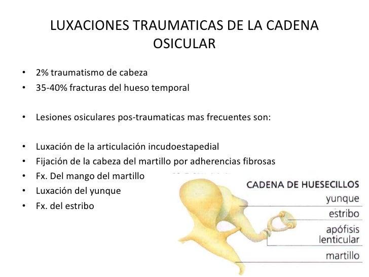 LUXACIONES TRAUMATICAS DE LA CADENA                     OSICULAR• 2% traumatismo de cabeza• 35-40% fracturas del hueso tem...
