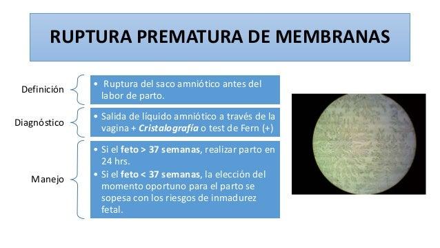 RUPTURA PREMATURA DE MEMBRANAS Definición • Ruptura del saco amniótico antes del labor de parto. Diagnóstico • Salida de l...