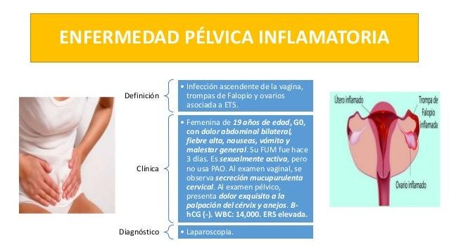 ENFERMEDAD PÉLVICA INFLAMATORIA Definición • Infección ascendente de la vagina, trompas de Falopio y ovarios asociada a ET...