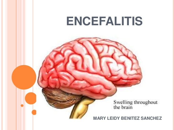 ENCEFALITIS <br />                            MARY LEIDY BENITEZ SANCHEZ<br />