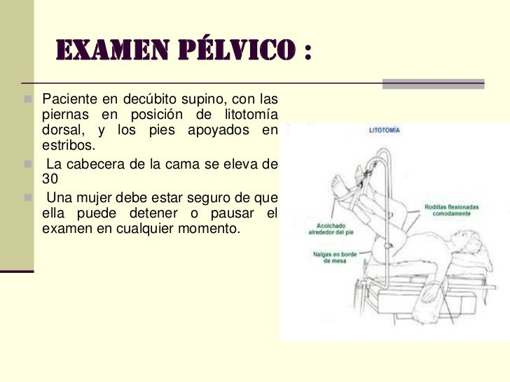 EXAMEN GINECOLOGICO Slide 3
