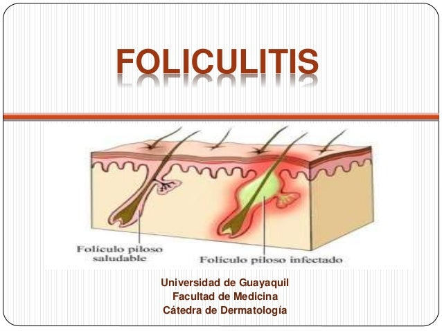 FOLICULITIS  Universidad de Guayaquil  Facultad de Medicina  Cátedra de Dermatología