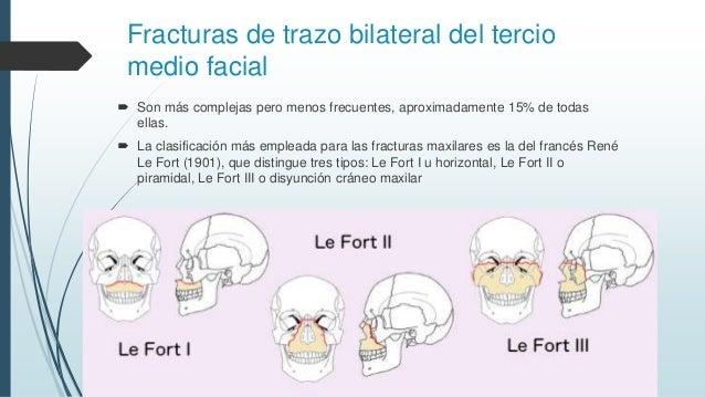 FRACTURAS DE LEFORT EPUB DOWNLOAD