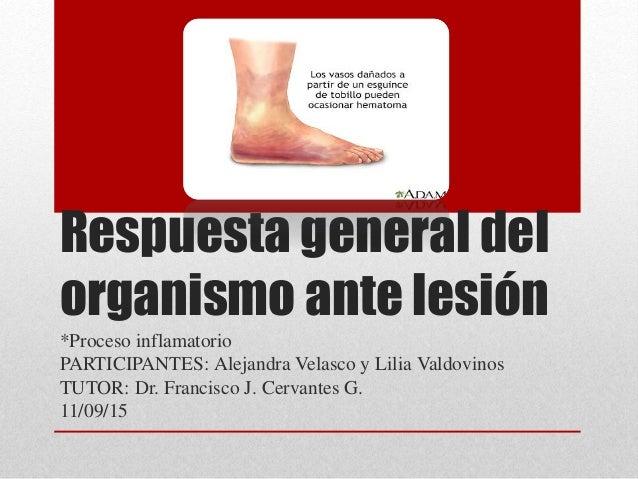Respuesta general del organismo ante lesión *Proceso inflamatorio PARTICIPANTES: Alejandra Velasco y Lilia Valdovinos TUTO...